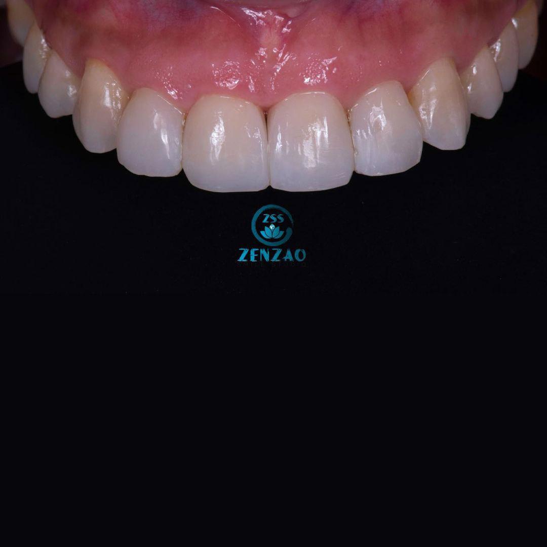 Zenzao-Smile-Studio-slide-6